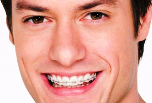 Adult Orthodontic Adult Prague